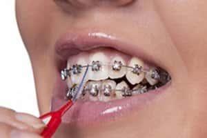 Tratamento com Aparelhos Odontológicos